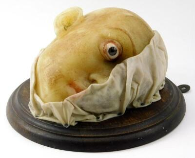 A late 19th/early 20thC French wax medical profile